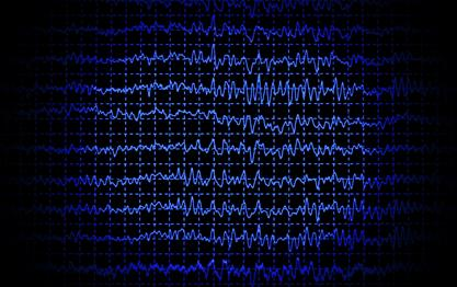 poly what to expect - Polysomnography - What to Expect