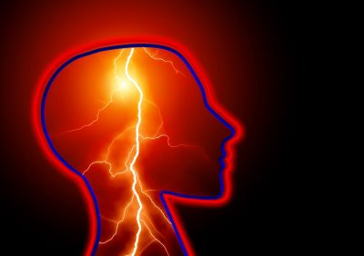 treating epilepsy Treating Epilepsy Treating Epilepsy