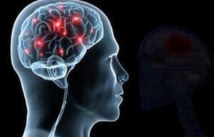 Neurological Care  Neurologist Stony Brook threevillage1